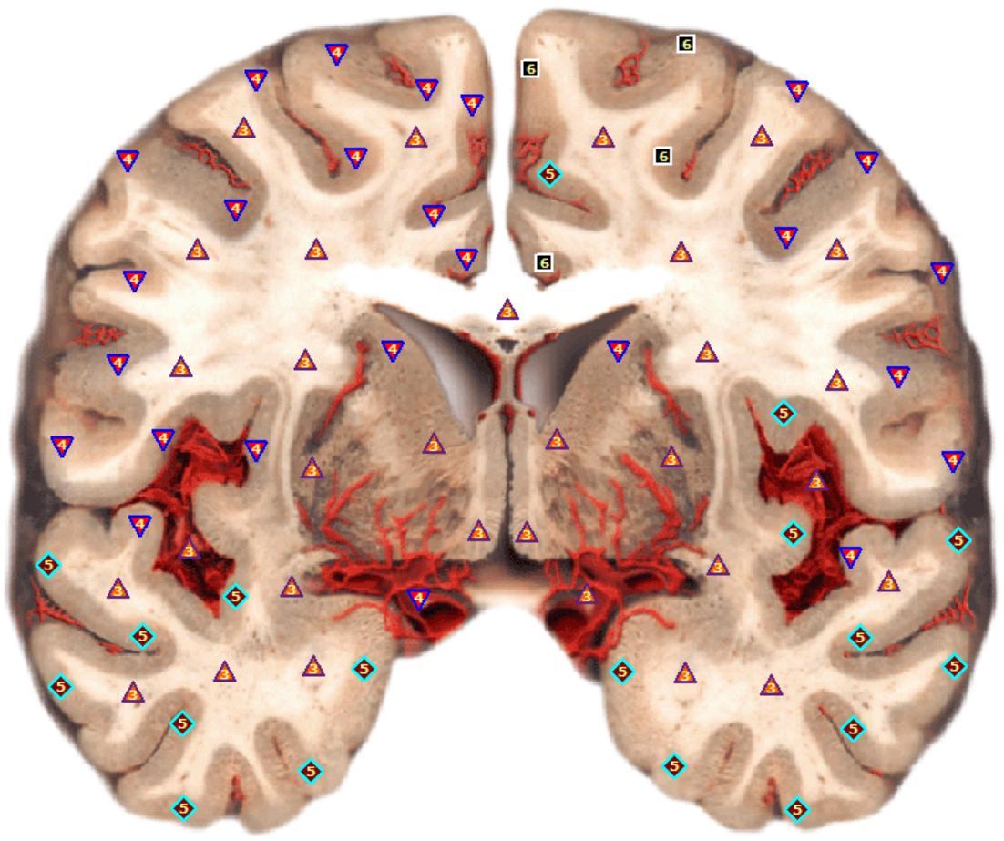 Prerez možganov - Pred terapijo